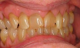 Из-за чего могут пожелтеть зубы
