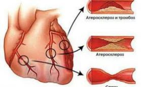 5 главных симптомов инфаркта миокарда, которые должен знать каждый
