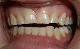 Бруксизм «стирает» зубы — что делать?