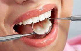 Как понять, что есть скрытый кариес и пора идти к стоматологу