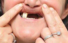Количество выпавших зубов расскажет, сколько осталось жить