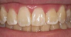 Почему желтеют зубы: неочевидные ошибки в питании и уходе