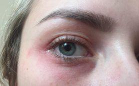 Красные пятна под глазами и их лечение