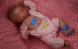 Беспроводной накожный датчик повысит эффективность выхаживания младенцев