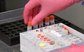 Тесты на антитела к COVID-19 могут быть ложноположительными в половине случаев
