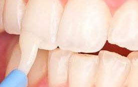 Как укрепить зубную эмаль?