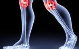 Заболевания суставов и связок