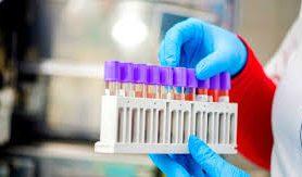 Тест на Т-клетки к коронавирусу может оказаться точнее теста на антитела