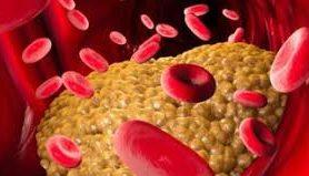 Тяжесть коронавирусной инфекции зависит от уровня холестерина в организме