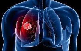 Испытания прошла новая схема лечения туберкулеза