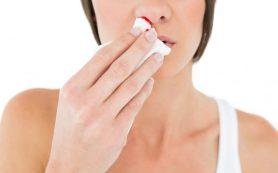 Насморк с кровью: причины симптома и способы лечения